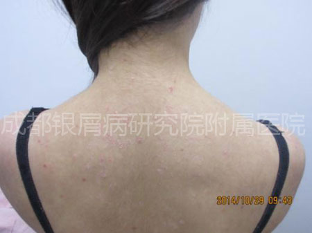 入院初期小青背部的皮损情况