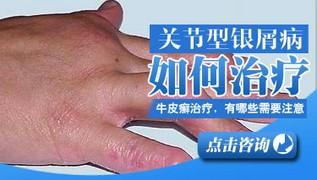 中医讲述牛皮癣病因