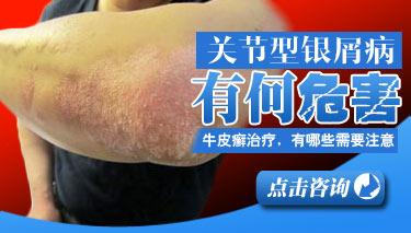 牛皮癣治疗过程中有哪些症状危害