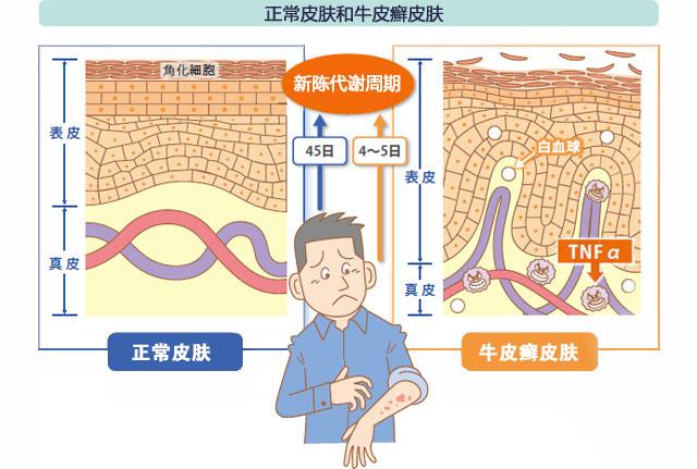 细胞代谢对比图01.jpg