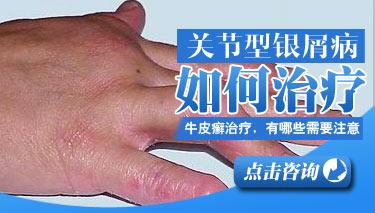 关节型银屑病治疗时要注意什么